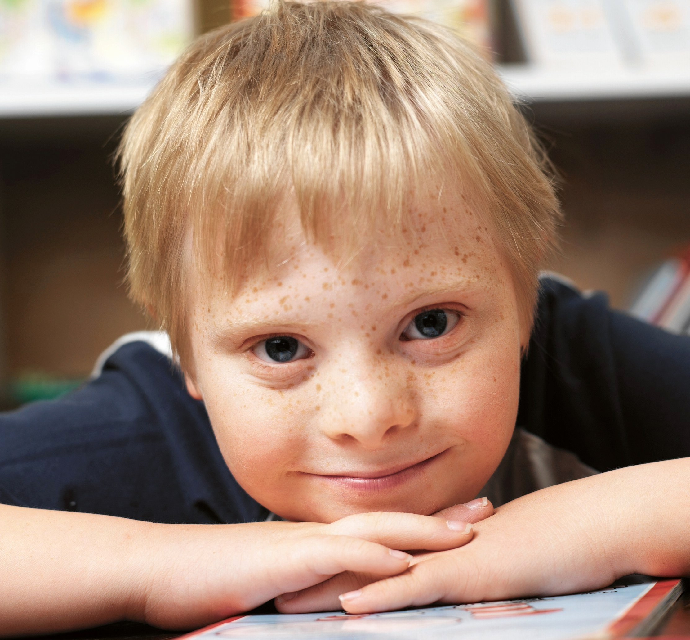 Essays On Down Syndrome Awesome Down Syndrome Research Paper